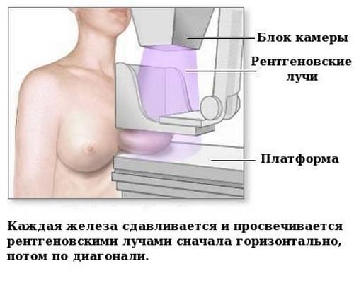 Как расшифровать маммографию