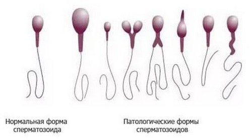 Незрелые сперматозоиды беременность