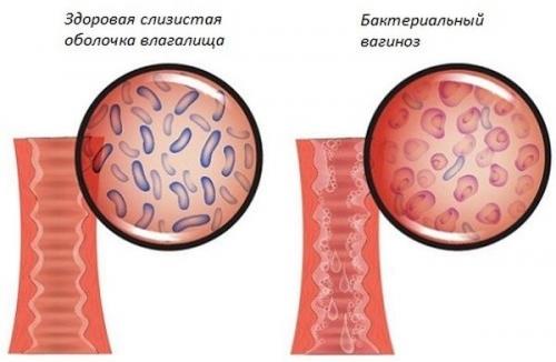 Белые выделения на трусах у женщин: вылечить, диагностика, побочные эффекты, схема