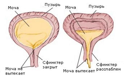 Атония мочевого пузыря у женщин