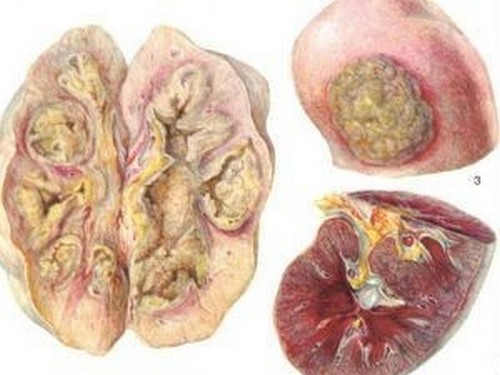 Паранефрит симптомы лечение и профилактика заболевания