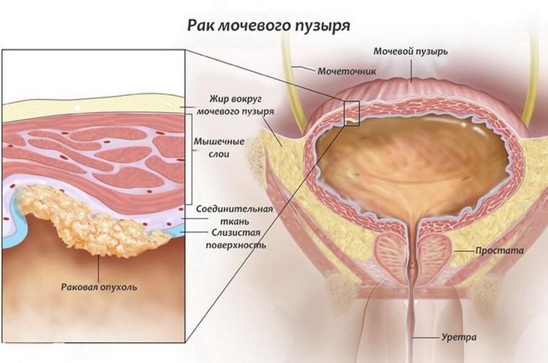 Удаление мочевого пузыря при раке прогноз