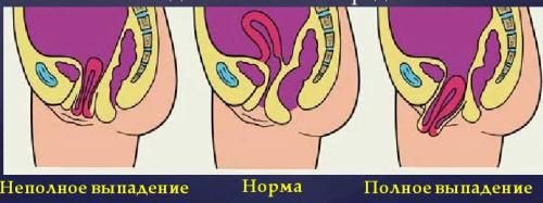 Дисфункция мышц тазового дна — Профилактика и Лечение